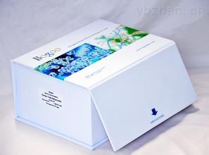 人鼻咽癌病毒(NPCV)elisa检测试剂盒
